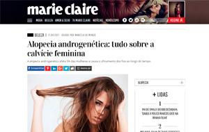 Na Marie Claire Online, a dermatologista Roberta Bibas fala sobre alopécia